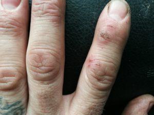 """""""Ik heb merkbaar effect ondervonden aan mijn handen"""", zegt Lars van Leeuwen"""