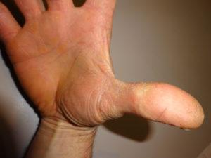 """Ewin Wolting: """"De plek tussen mijn rechter wijsvinger en duim is aanmerkelijk zachter en minder ruw geworden""""."""