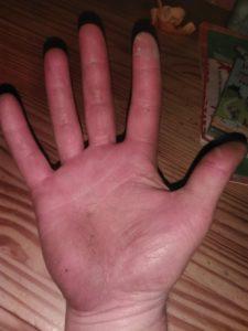 """""""De huid is wel zachter geworden. Ook lijken de handen minder ruw"""", vindt Edwin van der Gracht."""